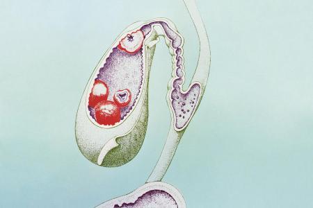 vésicule biliaire