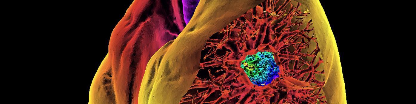 À la pointe de la lutte contre le cancer du poumon