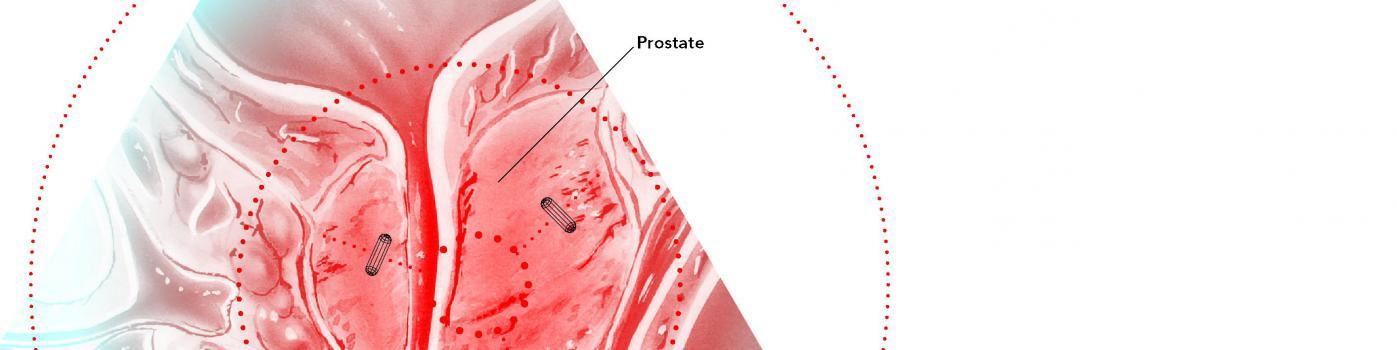 Radiothérapie contre le cancer de la prostate : un GPS révolutionnaire