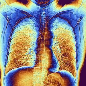 Pneumonie mieux détectée