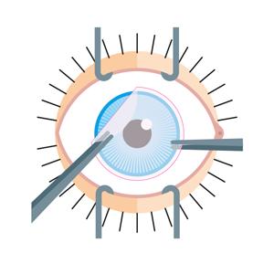Pose du patch sur la cornée et la conjonctive