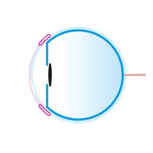 Vue latérale de l'œil