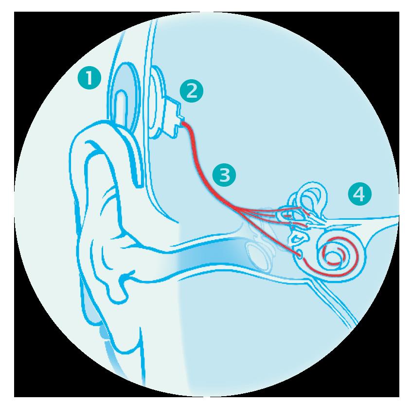 neuroprothèse