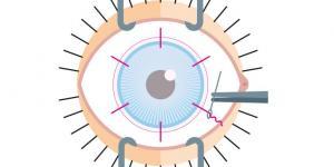 Des patchs de membrane amniotique pour réparer les cornées